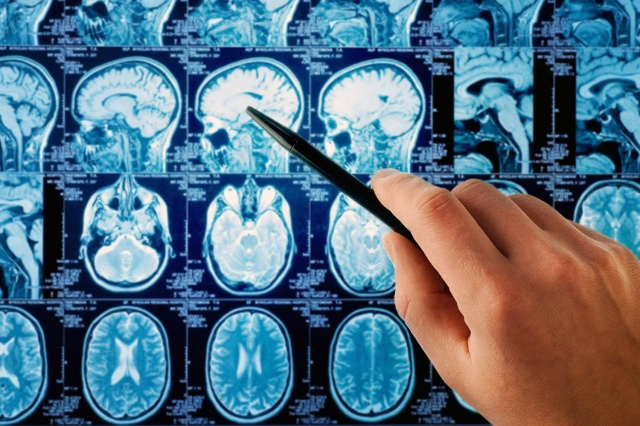 can-cell-phones-cause-brain-cancer-we-asked-the-experts-640x0